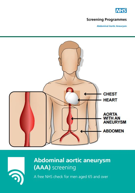 Abdominal Aortic Aneurysm (AAA) Screening Programme - an important ...