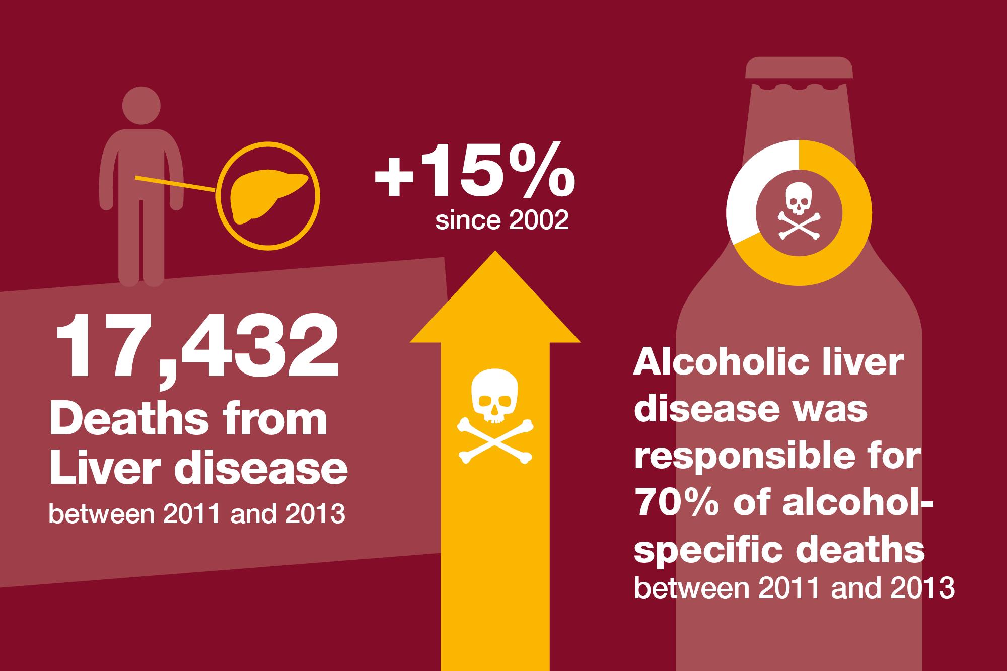 alcoholic liver disease treatment pdf