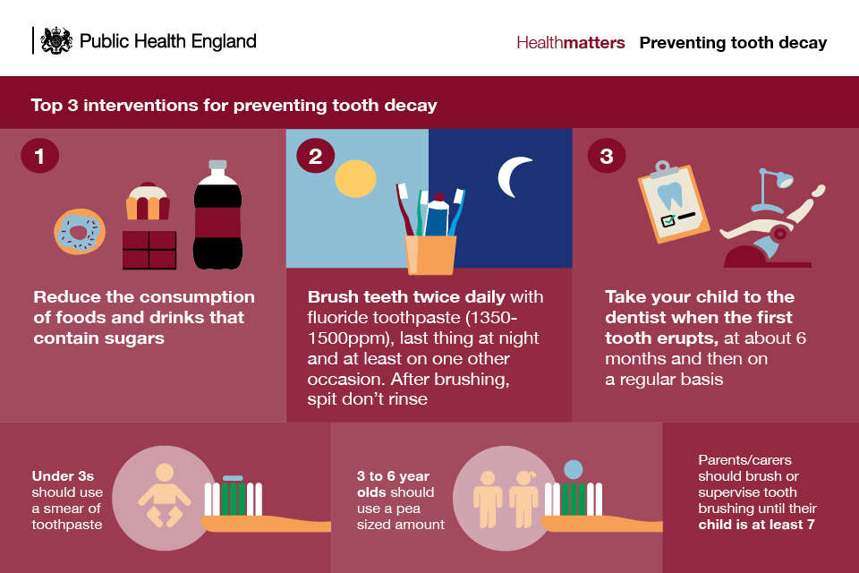 Tooth decay – what is it and how do I spot it? - Public health matters